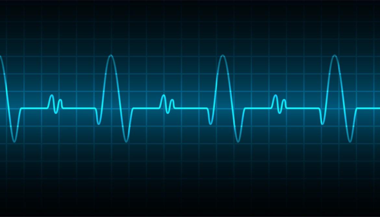 pulse-EKG-wave